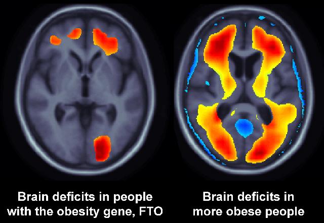 ген FTO увеличивает риск болезни Альцгеймера