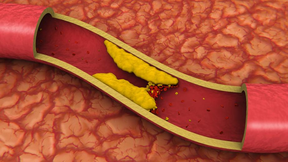 окисленный холестерин