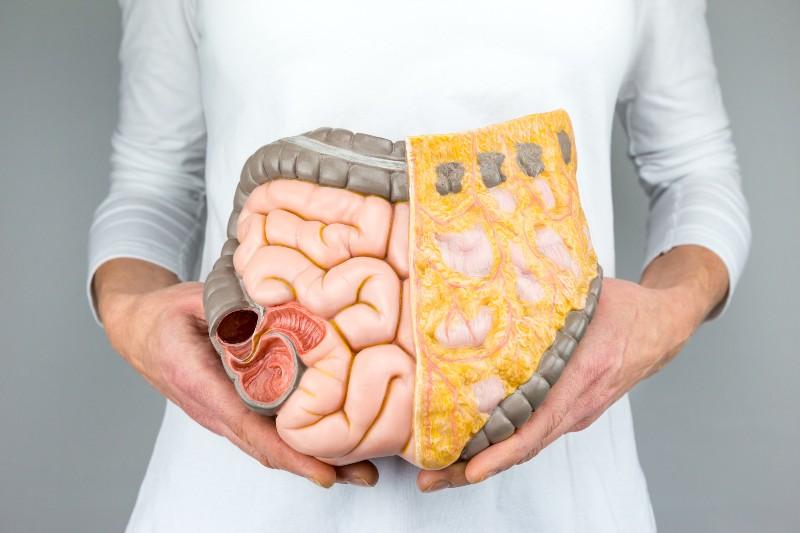 ожирение от фруктозы