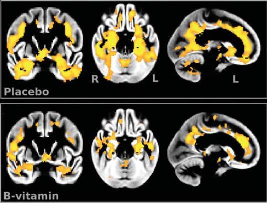 атрофия мозга замедляется витаминами группы В