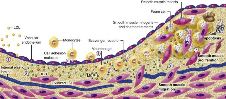 Растительная диета лечит атеросклероз