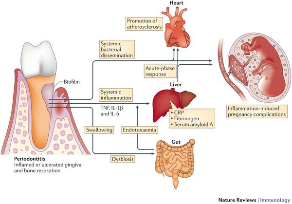 Воспаления в ротовой полости может увеличить риска хронических заболеваний