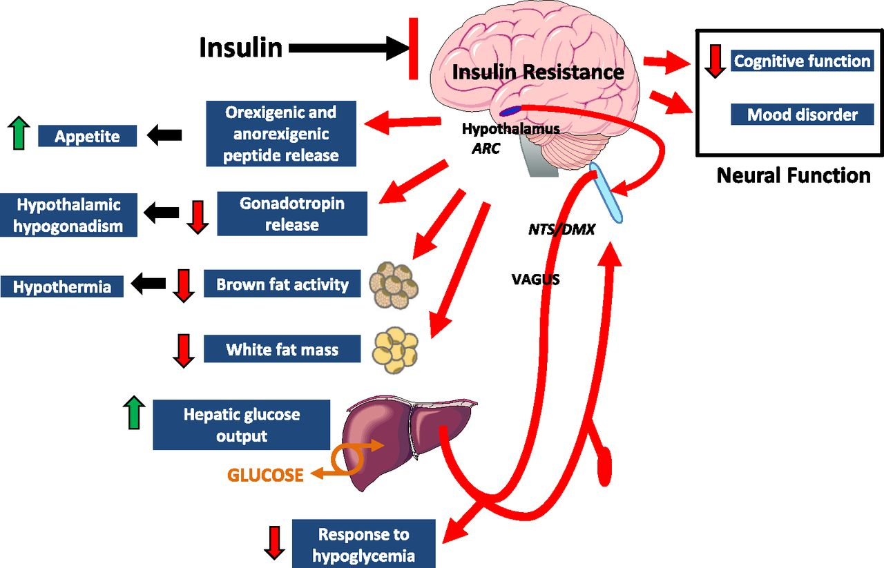 Резистентность к инсулину вызывает деменцию и болезнь Альцгеймера