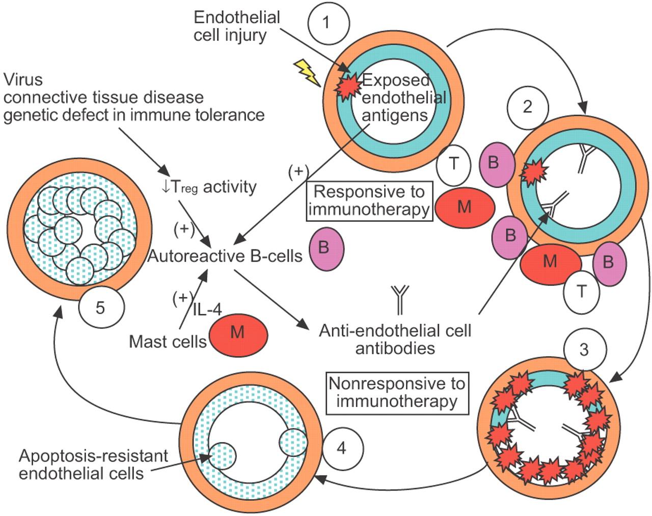 Гипертония при аутоиммунном заболевании