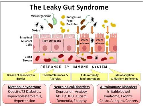 Ревматоидный артрит связан с микрофлорой кишечника