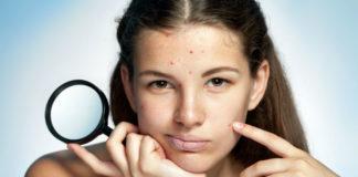 Непереносимость гистамина может быть причиной многих болезненных состояний