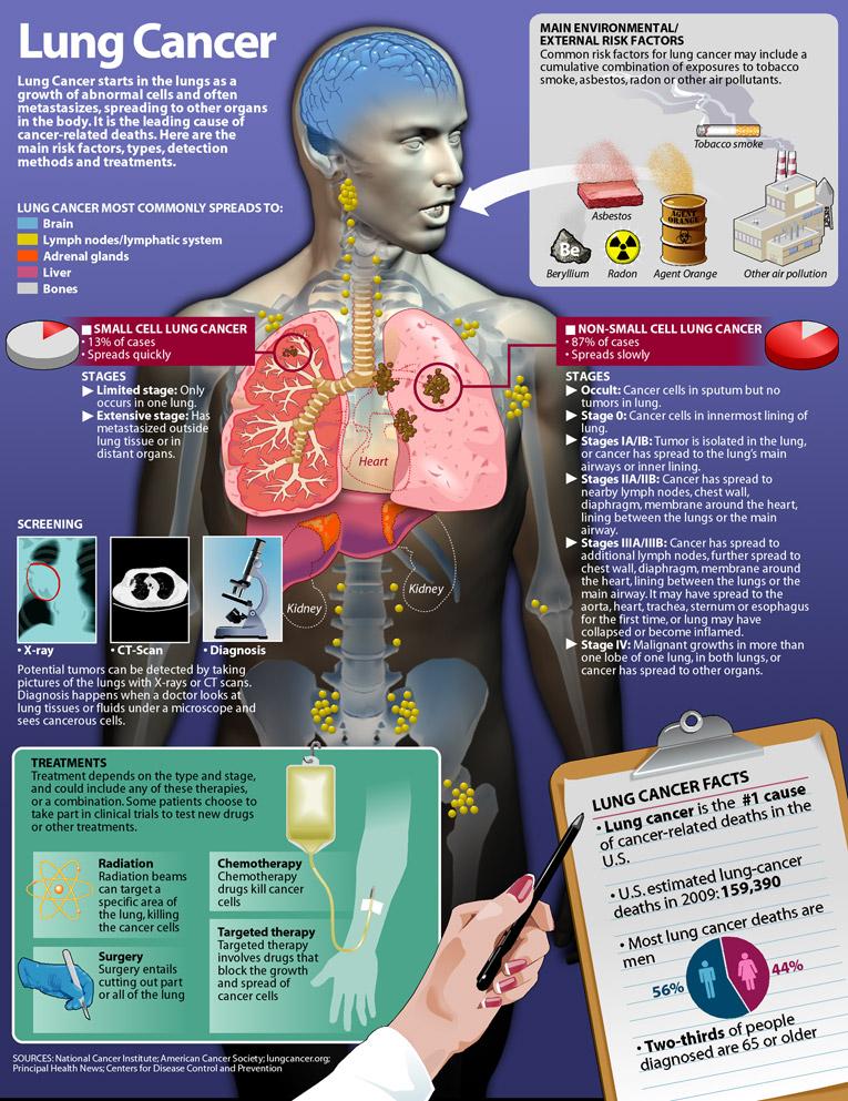 Что может вызвать рак?