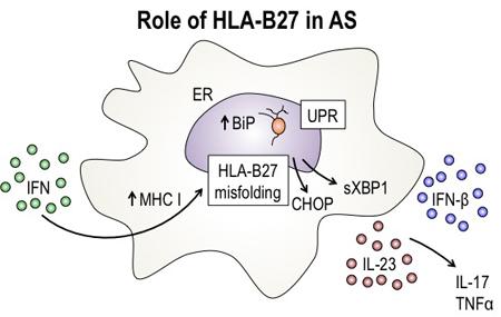 Ген HLA-B27 при болезни Бехтерева