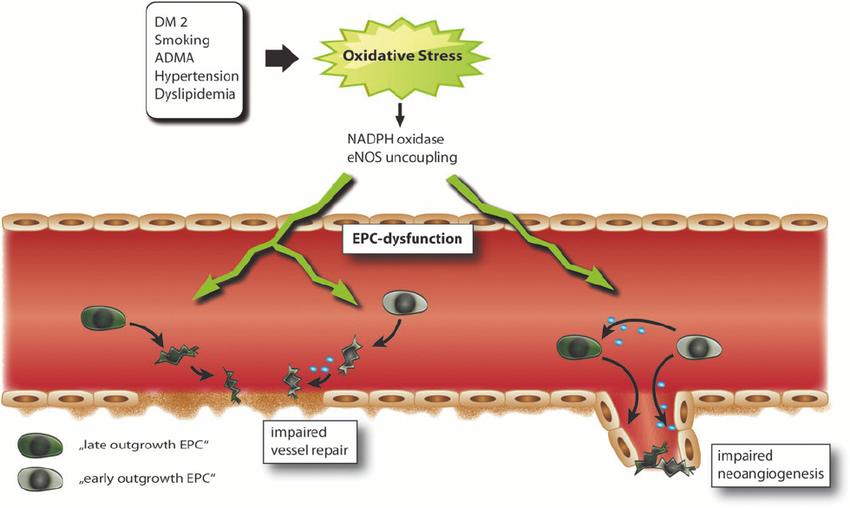 Развитие сердечно-сосудистых заболеваний при окислительном стрессе