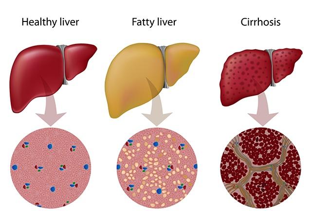 Как выглядят ткани печени при неалкогольной жировой болезни печени