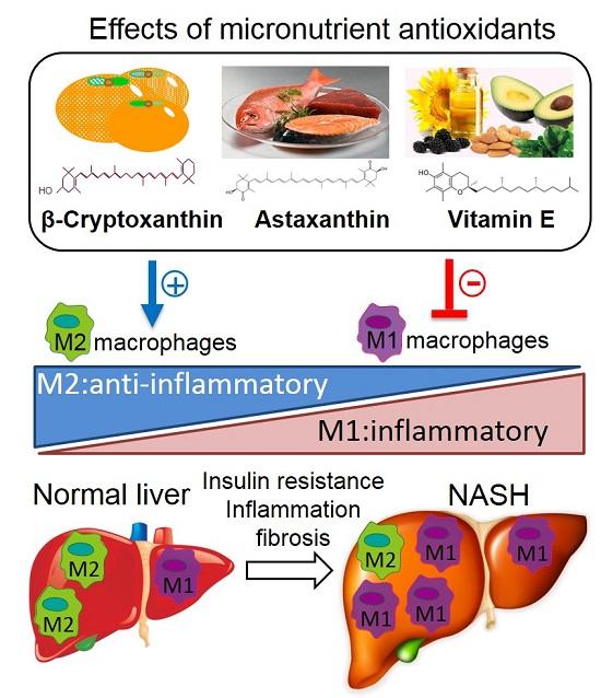 Положительное влияние антиоксидантов на торможение развития жировой болезни печени