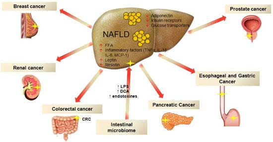 Неалкогольная жировая болезнь печени увеличивает риски различных онкологических заболеваний