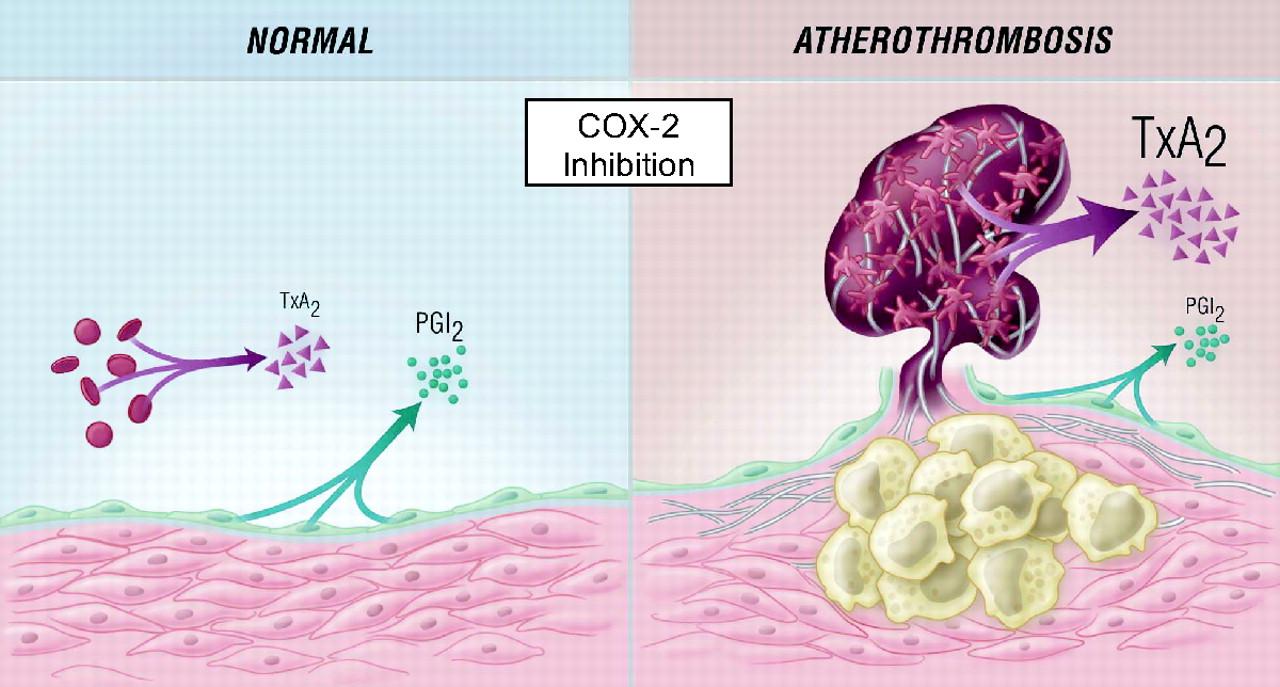 Схема влияния ингибиторов ЦОГ-2 на предотвращение тромбоза
