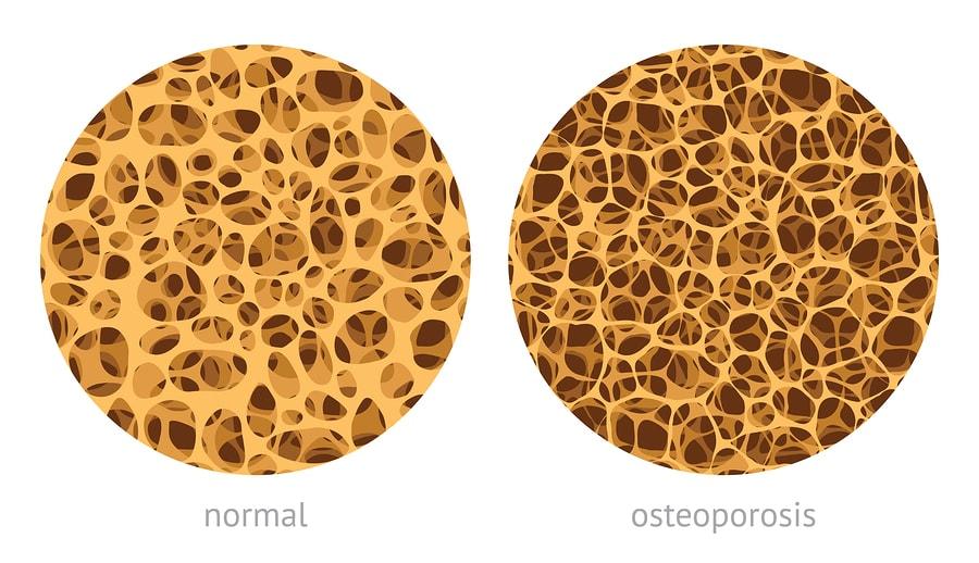 Остеокальцин и остеопороз