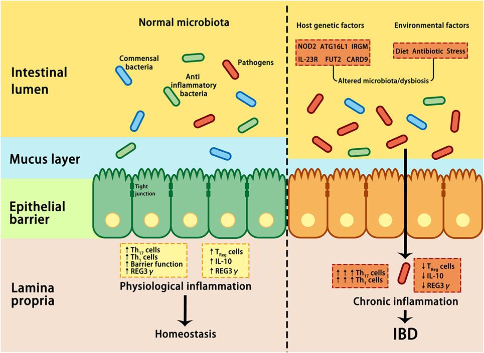 Схема возникновения хронического воспаления при нарушении микрофлоры кишечника