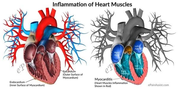 Воспаление сердечной мышцы (миокардит)