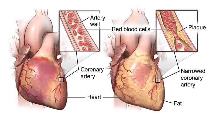 Стенокардия - внезапное сокращение притока крови к сердцу