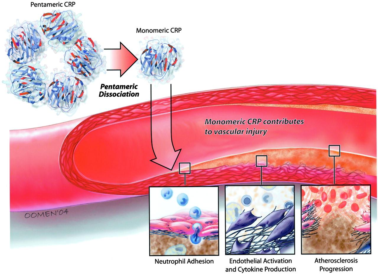 Участие С-реактивного белка в формировании атеросклероза