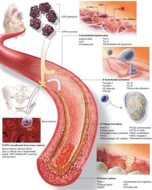 С-реактивный белок при сердечно-сосудистых заболеваниях