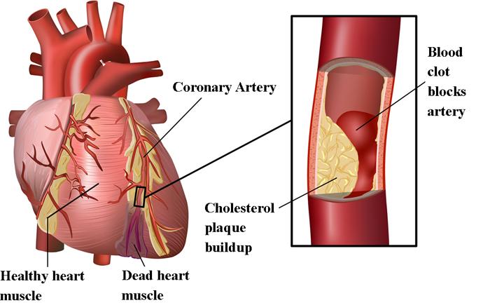 Инфаркт сердца и высокий уровень ЛПНП