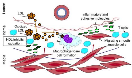 Схема окисления ЛПНП холестерина