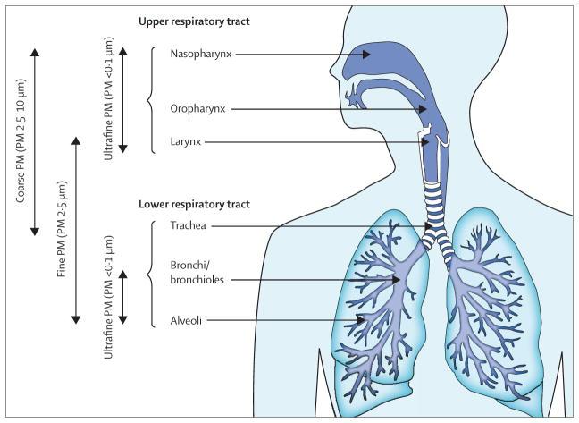 Места осаждения в дыхательных путях твердых частиц из загрязненного воздуха в зависимости от их размеров.