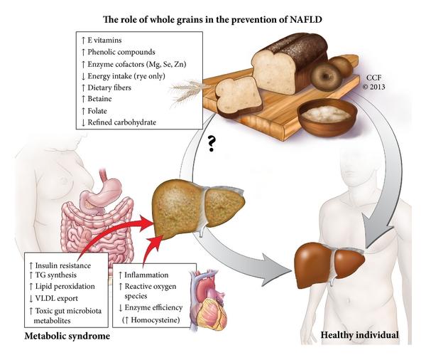 Лечение неалкогольной жировой болезни печени