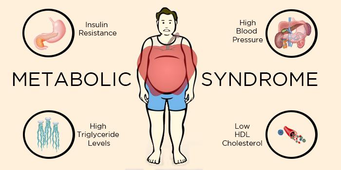 Признаки метаболического синдрома