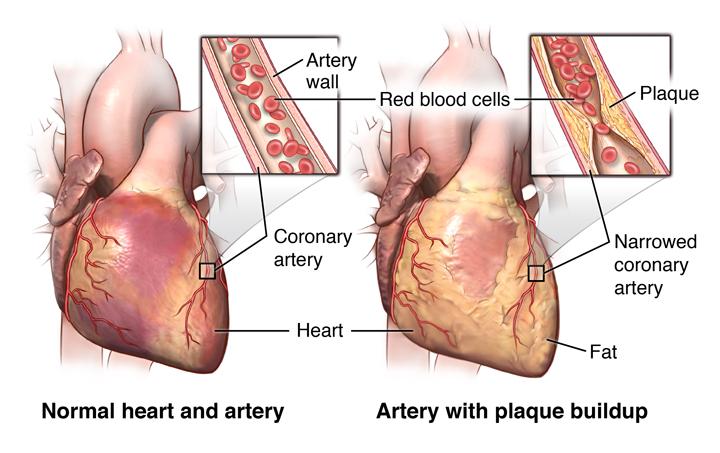 Сердце, пораженное атеросклерозом