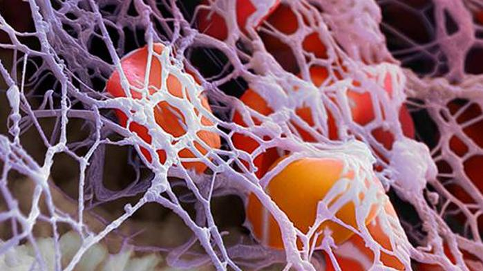 Как понизить фибриноген в крови народными средствами