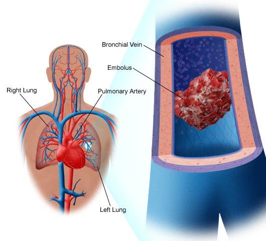 Тромбы в артериях