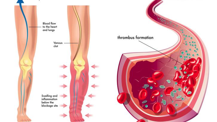 Тромбофлебит - развитие тромбоза и воспаления в венах
