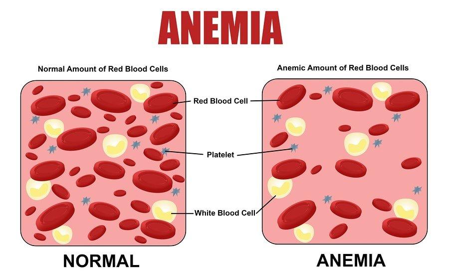Низкий уровень гемоглобина называется анемией.