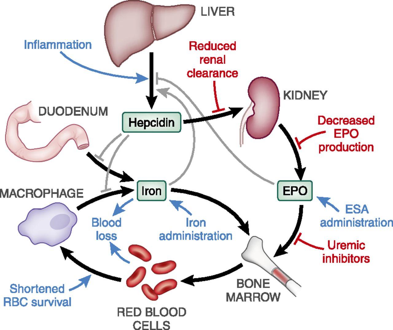 Механизм развития анемии при хронической болезни почек