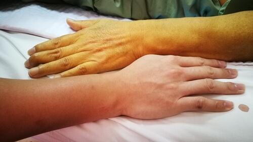 Изменение цвета кожи при анемии у пожилых людей
