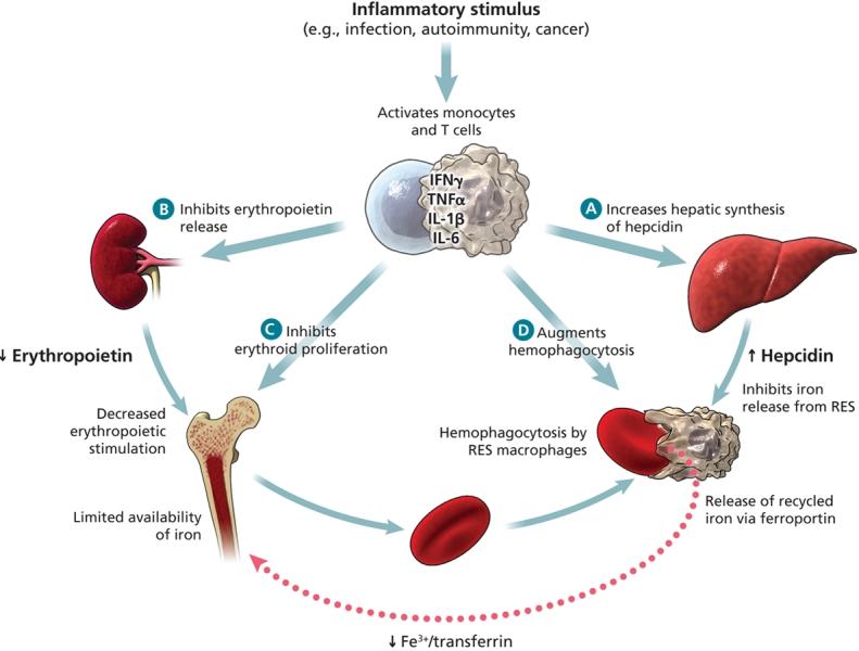 При воспалительных заболеваниях цитокины, выделяемые активированными лейкоцитами и другими клетками, оказывают многократное действие, способствующее снижению уровня гемоглобина