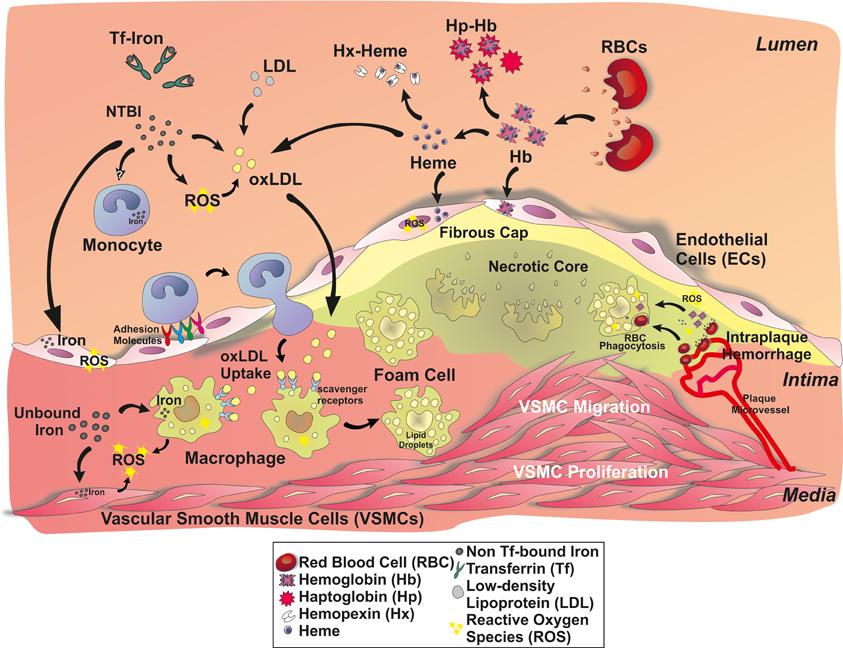Роль свободного гемоглобина и железа в развитии атеросклероза.
