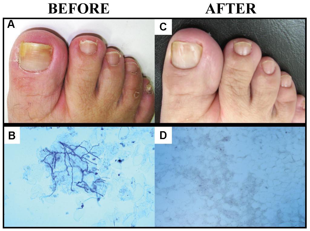 Прополис лечит грибковые инфекции ногтей