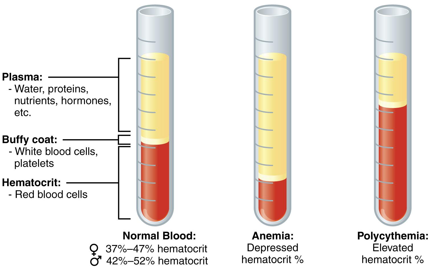 СОЭ при разных состояниях здоровья (норма или анемия)