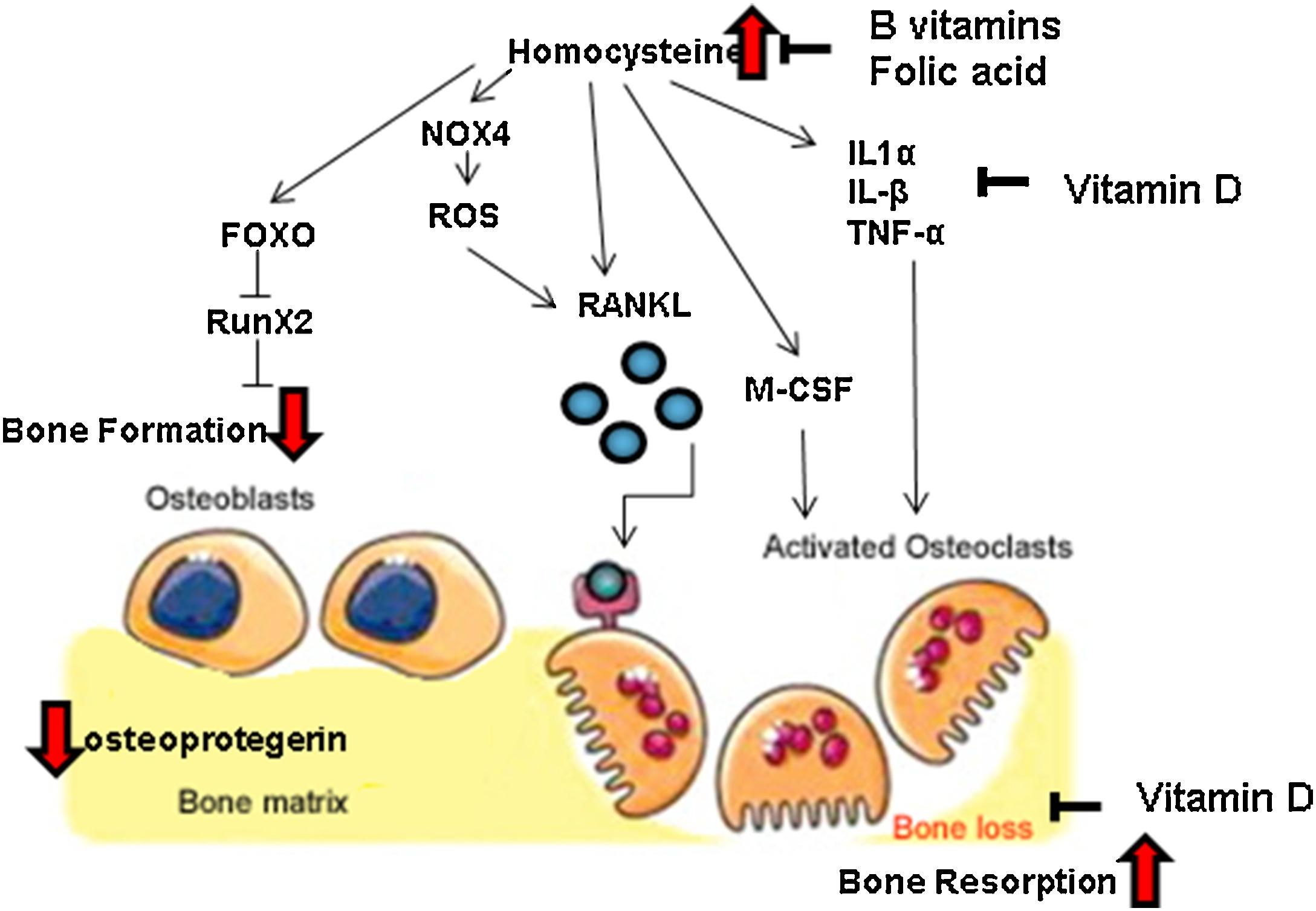 Гомоцистеин способствует остеопорозу