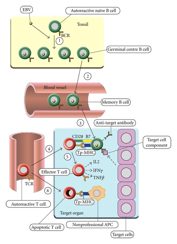 Схъема развития аутоиммунного заболевания под воздействием вируса Эпштейна-Барр