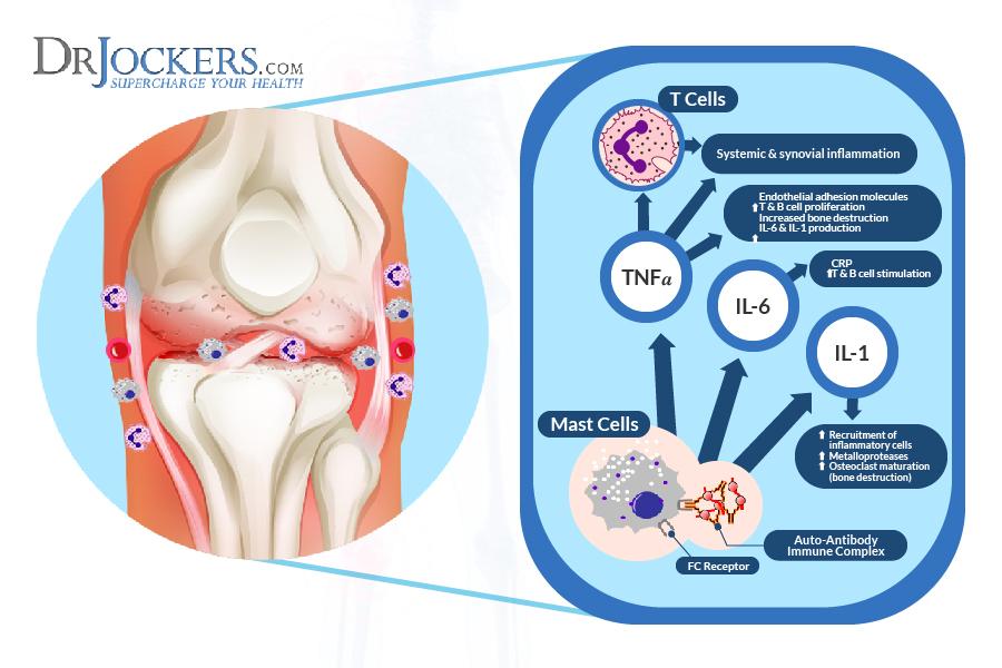 Воспалительные маркеры при аутоиммунном заболевании суставов