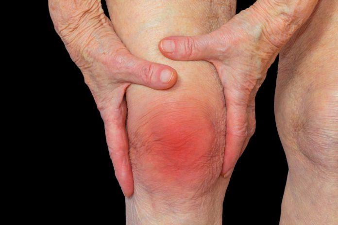 Ревматоидный фактор при ревматоидном артрите