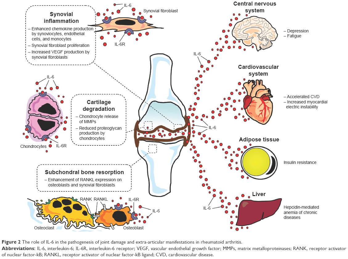 Негативное влияние цитокина Il-6
