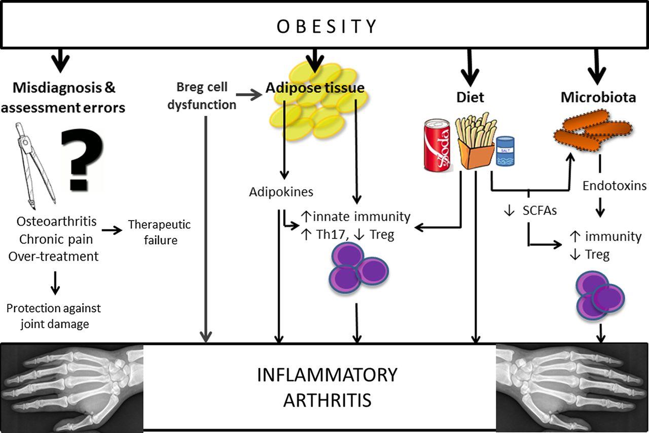 Ожирение увеличивает риск ревматоидного артрита