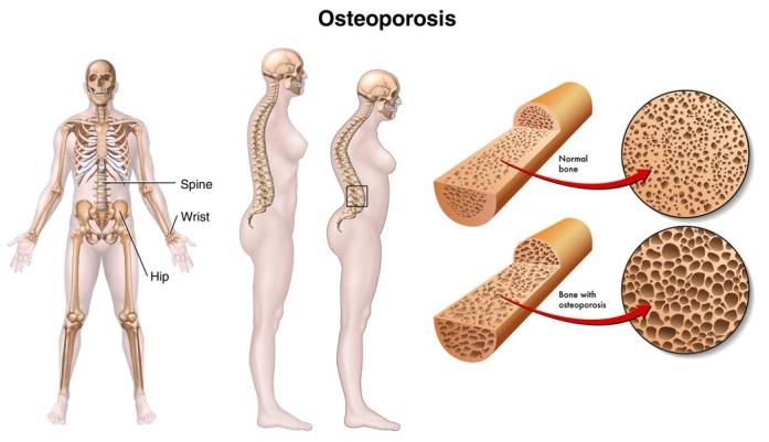 Проявление остеопороза