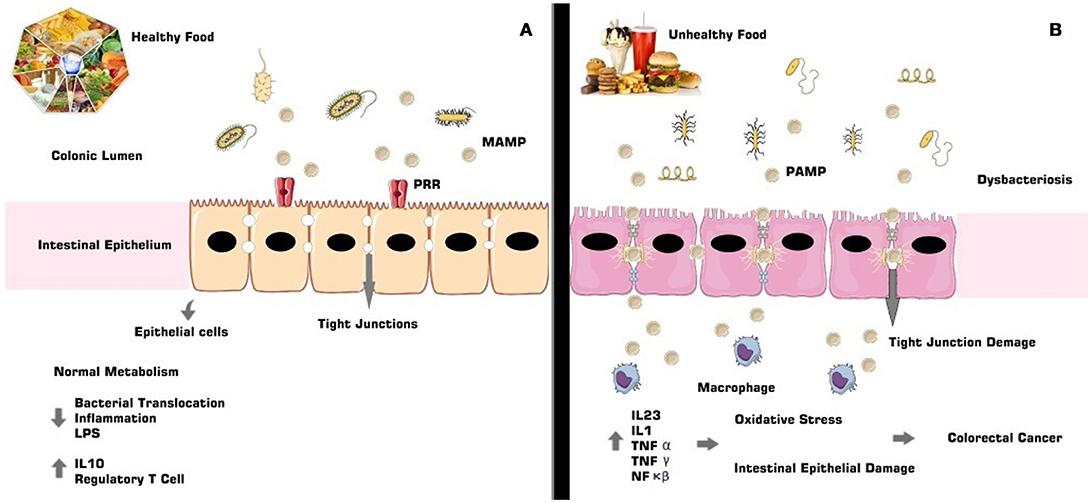 Разнообразие микрофлоры способствует здоровью кишечника и всего организма