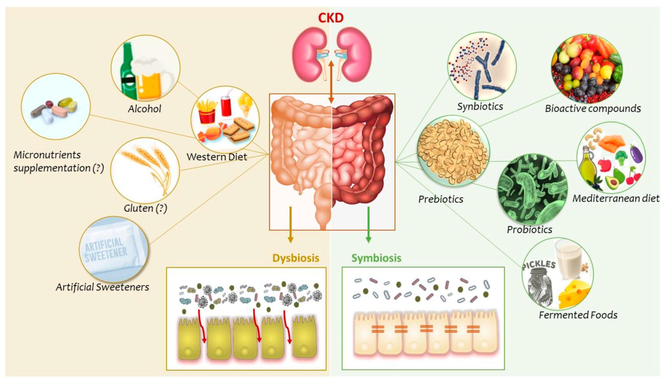 Восстановление микрофлоры кишечника необходимо при хронической болезни почек