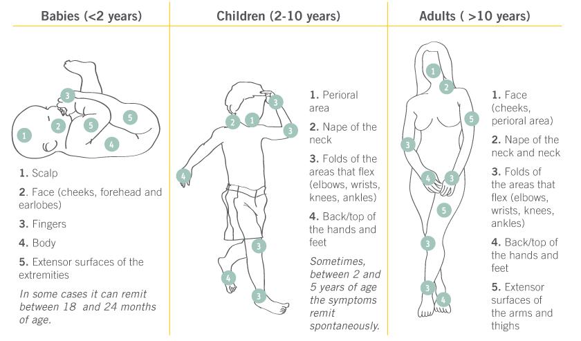 Места проявления атопического дерматита