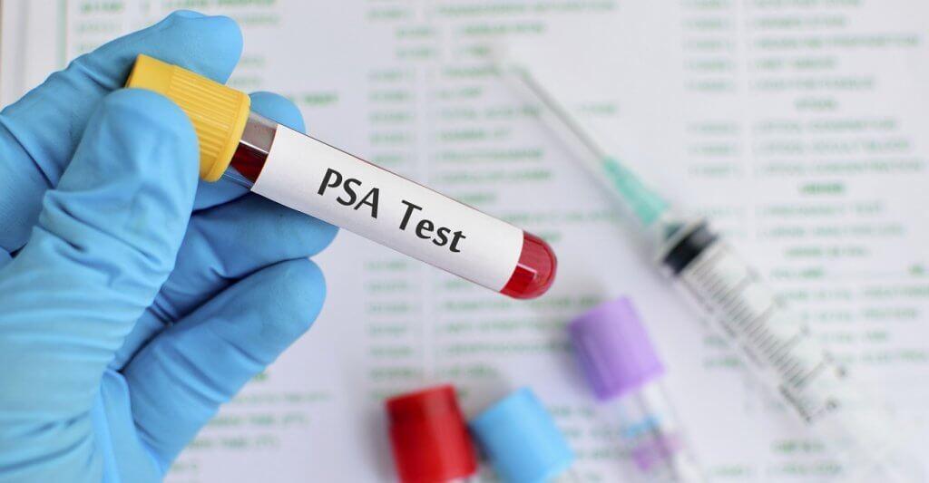 Анализ ПСА при простатите: нормы общего маркера, когда онкология